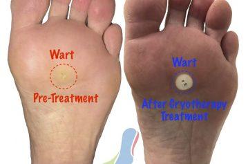 Perth Podiatrist FAQ: Treatment for Foot Warts or Plantar Verrucae